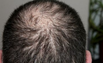 Alopezie kann viele Gründe haben.
